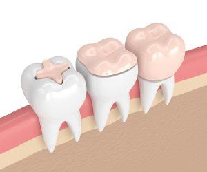 dentisteria